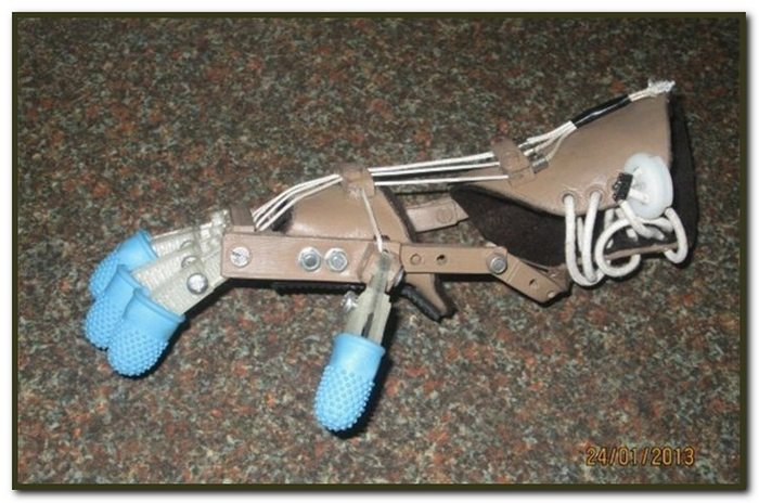 A cheap, 3D printed, open source articulated prosthetic hand