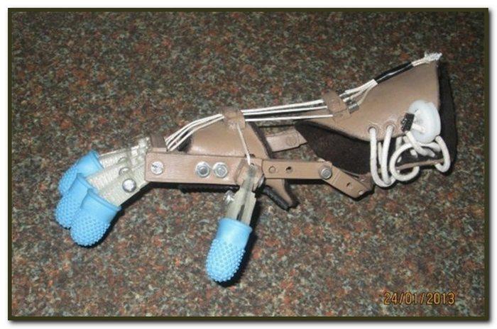 Механические пальцы протезы своими руками