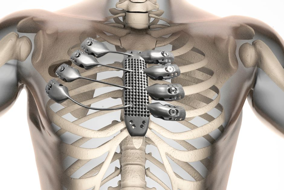 3D printed rib cage and sternum implant