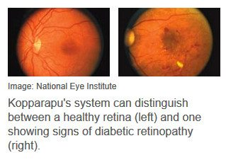 healthy retina (left) and one showing signs of diabetic retinopathy